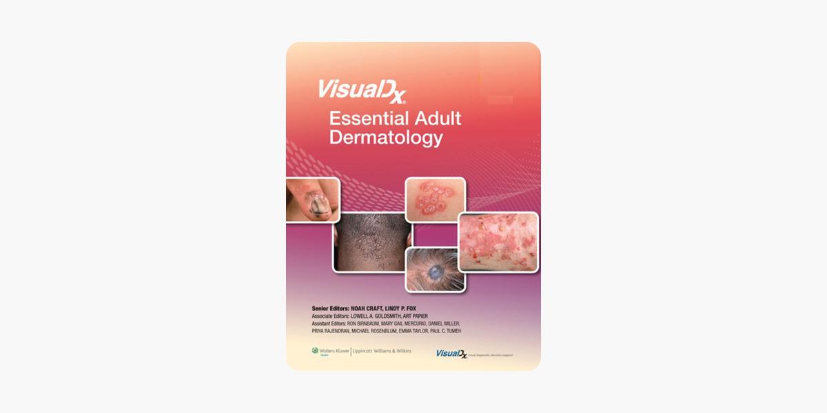 VisualDx: Essential Adult Dermatology