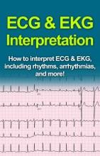 ECG & EKG Interpretation