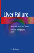 Download and Read Online Liver Failure