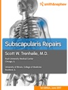 Subscapularis Repairs