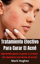 Tratamiento Efectivo Para Curar El Acné: Aprende Paso A Paso A Tratar De Manera Correcta El Acné