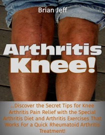Download of Arthritis Knee! Discover the Secret Tips for Knee Arthritis Pain Relief with the Special Arthritis Diet and Arthritis Exercises That Works For a Quick Rheumatoid Arthritis Treatment! PDF eBook