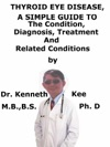 Thyroid Eye Disease A Simple Guide To The Condition Diagnosis Treatment And Related Conditions