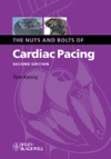 The Nuts And Bolts Of Cardiac Pacing