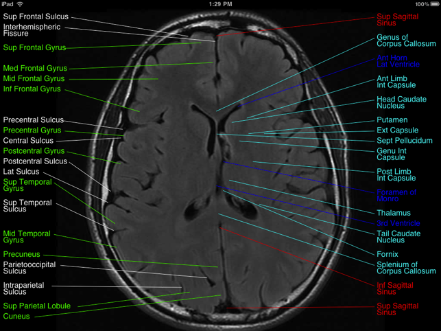 Brain Mri Atlas On The App Store