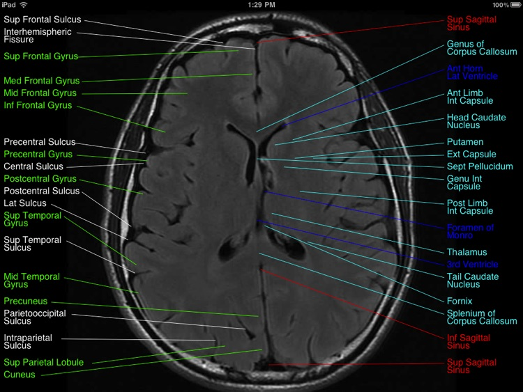 Brain MRI Atlas screenshot-3