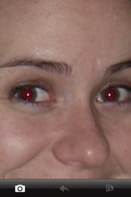 Red Eye Remover HD