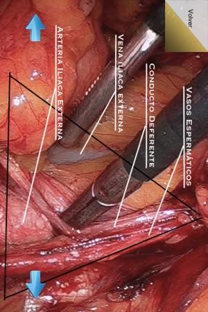 Hernia Inguinal -- Cirugía Laparoscópica de la Hernia Inguinal Lite ...