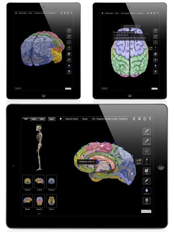 Brain and Nervous System Pro III screenshot-4