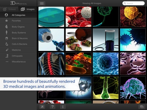 3D4Medical Images & Animationsのおすすめ画像1
