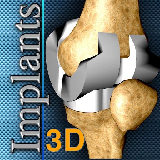 Implants 3D