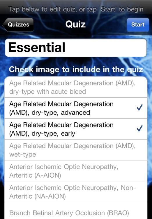 iEye Retina screenshot-3