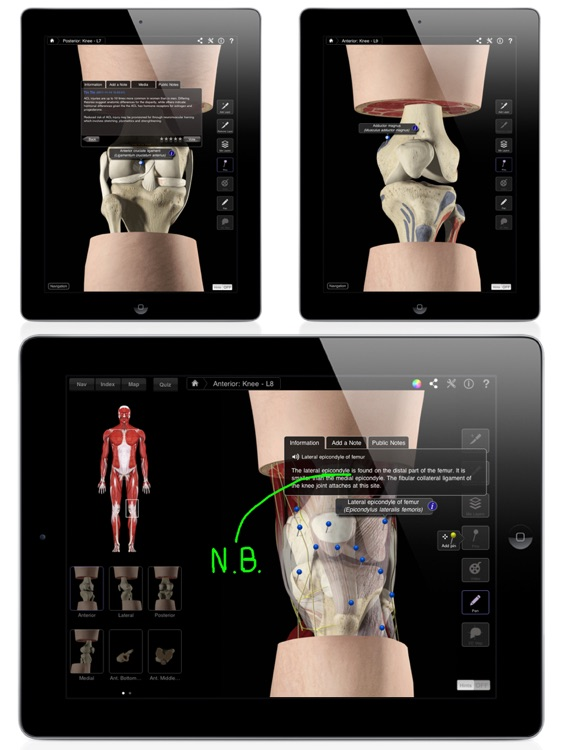 Knee Pro III for iPad screenshot-3