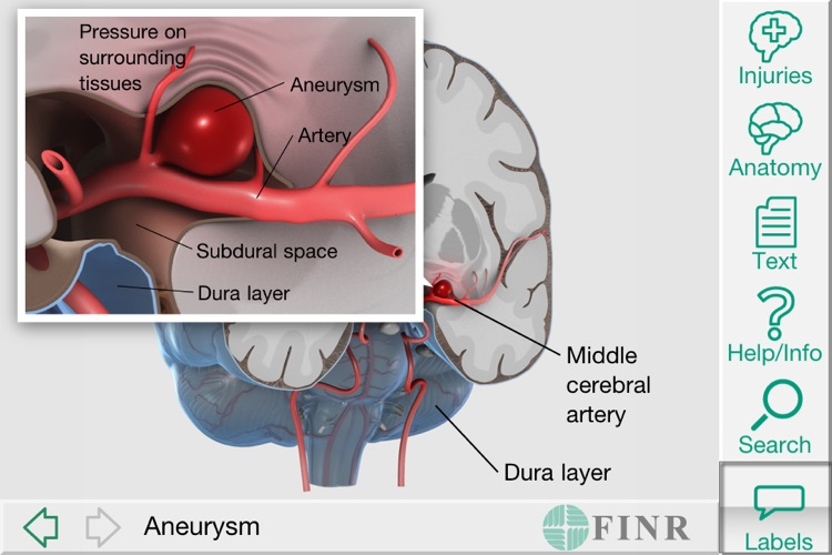 FINR Brain Atlas