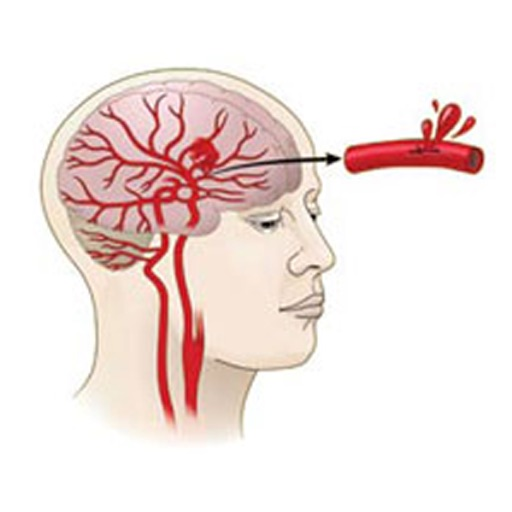 Stroke and Hemorrhage