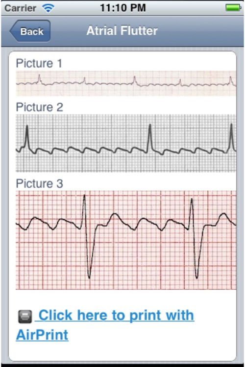ECG screenshot-4