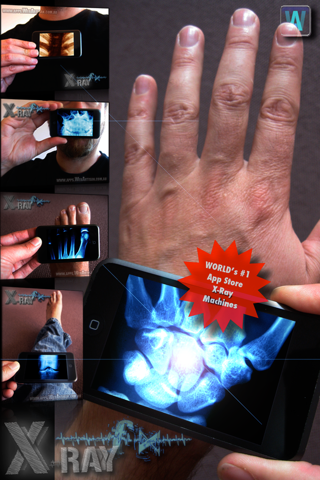 Amazing X-Ray FX ² PRO screenshot 1
