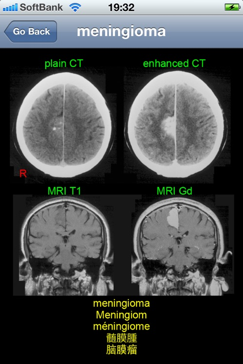 neuroradiology multilingual