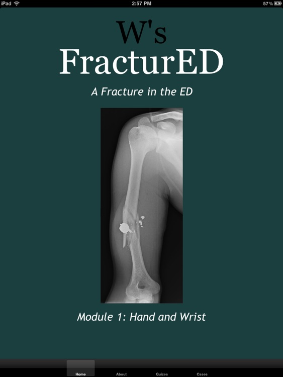 FracturED: A Fracture in the ED; Module 1: Hand and Wrist