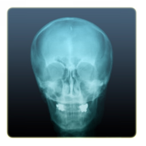 X-Ray Camera Pro by Fingersoft