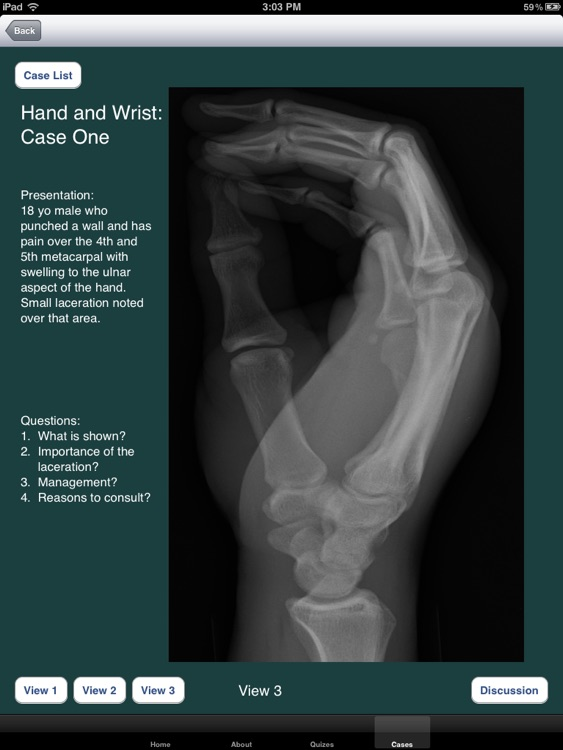 FracturED: A Fracture in the ED; Module 1: Hand and Wrist screenshot-4