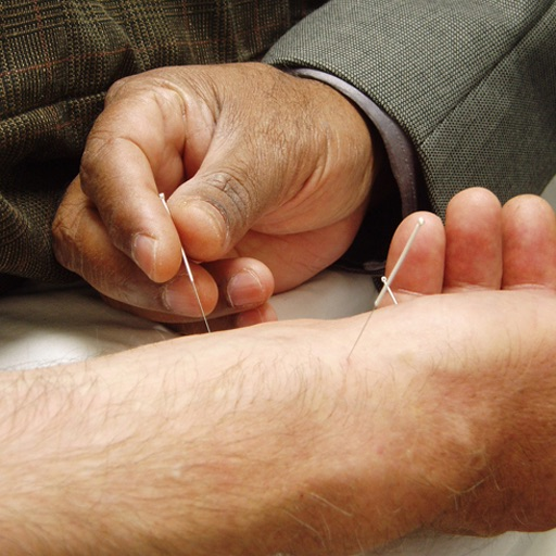 Acupuncture Guidelines