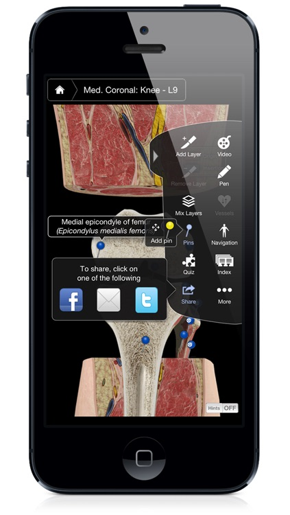 Knee Pro III with Animations - iPhone Edition screenshot-3
