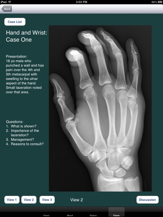 FracturED: A Fracture in the ED; Module 1: Hand and Wrist screenshot-3