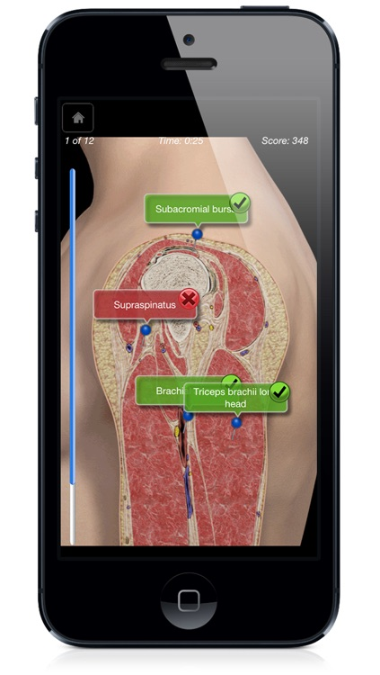 Shoulder Pro III with Animations - iPhone Edition