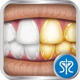 Virtual Teeth Whitening