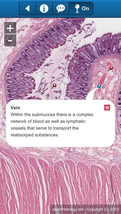 smart Histology screenshot-3