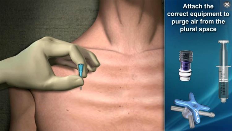 Medrills: NCD for Pneumothorax screenshot-4