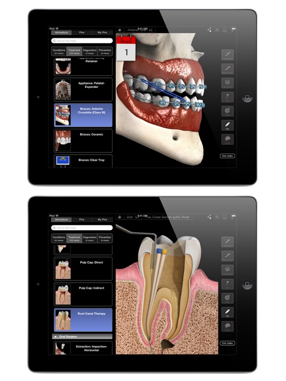 Dental Patient Education screenshot-4