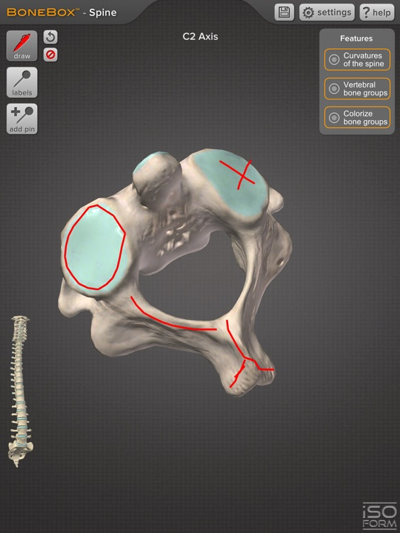 BoneBox™ - Spine Viewer screenshot-3