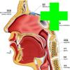 慢性咽炎专治手册