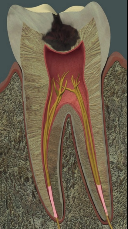 Dental Pain screenshot-2