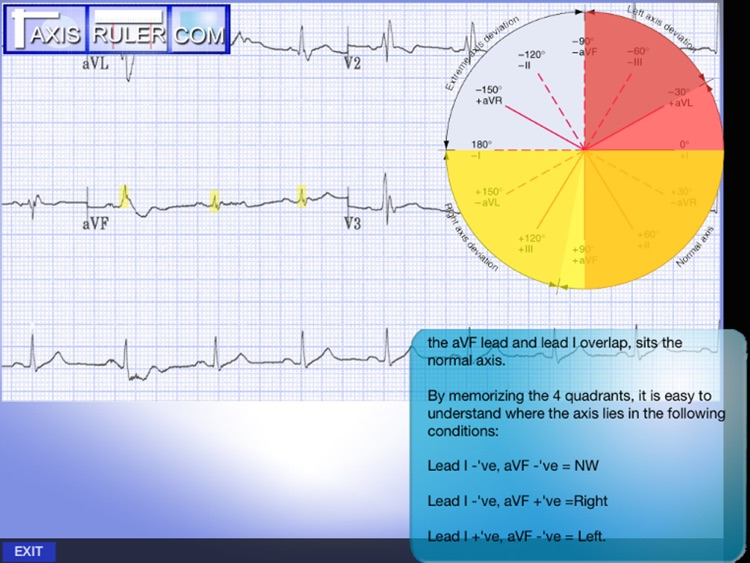 ECG Genius screenshot-1