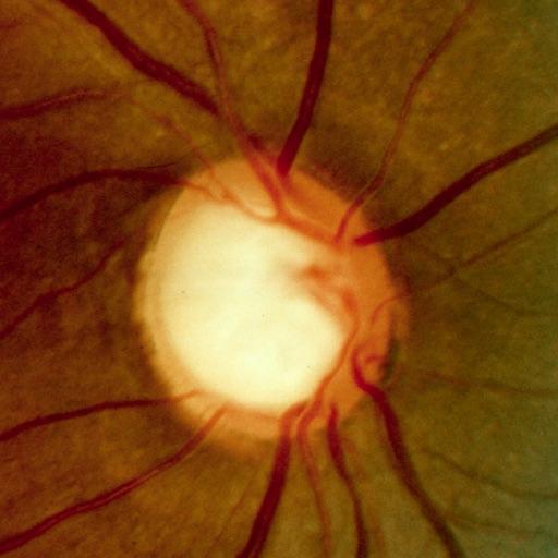 Glaucoma Calc