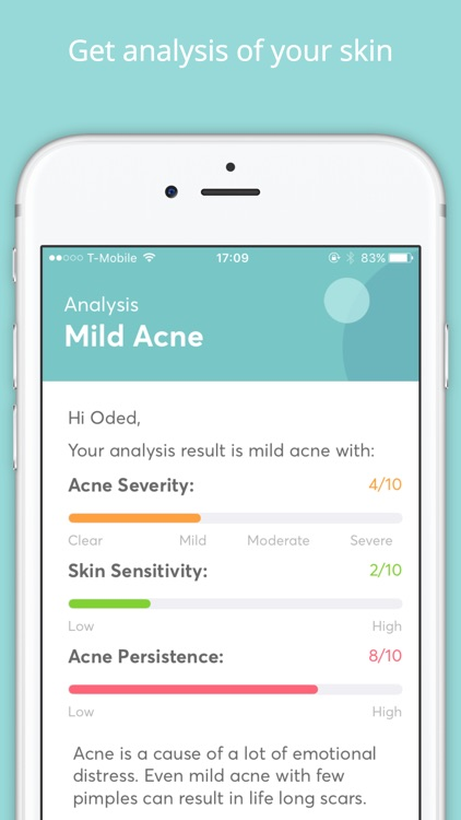MDacne - What is the best treatment for Acne?