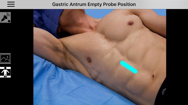 AnSo Anaesthesia Sonoanatomy screenshot-3