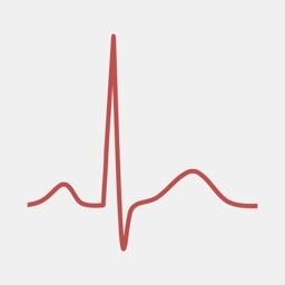 ECG Calc Lite