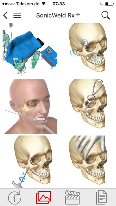 KLS Martin CMF Implants screenshot four