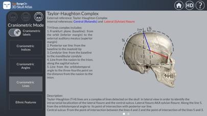 3D Skull Atlasのおすすめ画像5