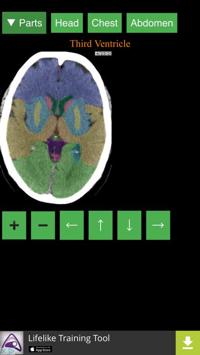 点击获取Anatomy on Radiology CT