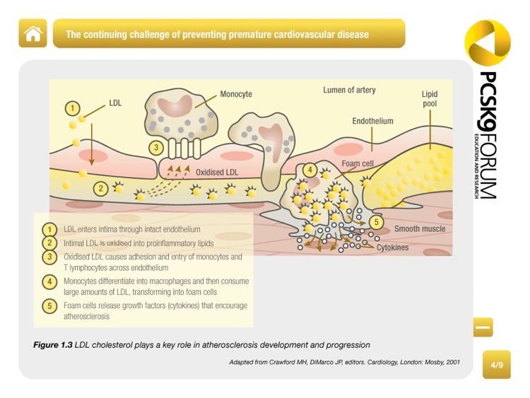PCSK9 Forum: Lipid Lowering