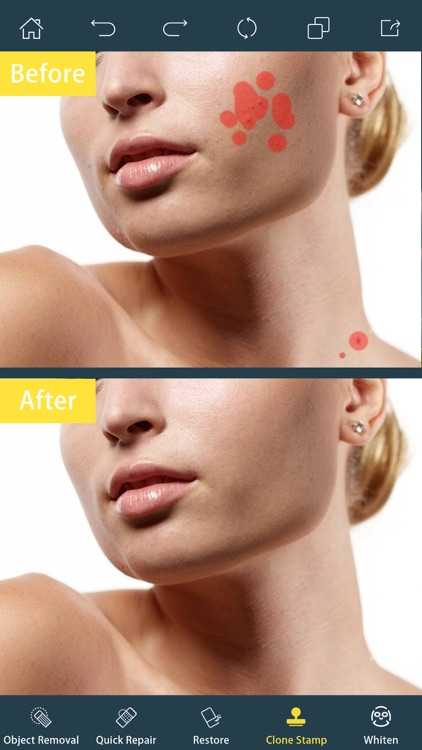 Photo Retouch- Blemish Remover