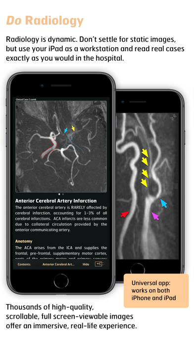 Radiology - Imaging in Stroke screenshot three