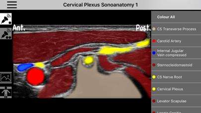 Baixar AnSo Anaesthesia Sonoanatomy para Pc