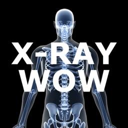 X-Ray Wow