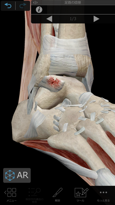 筋肉とキネシオロジー ScreenShot6